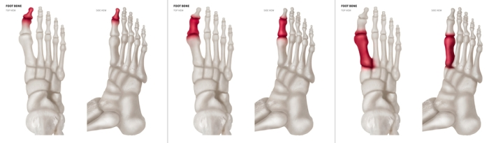 Best shoes for arthritis in Big toe