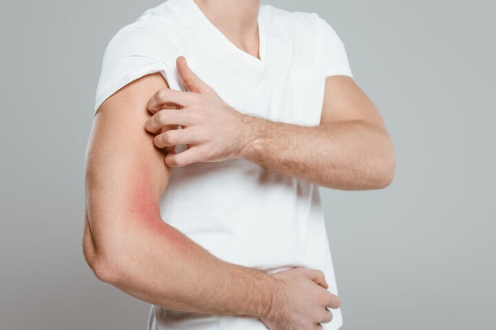 Man Scratching his Itchy Skin